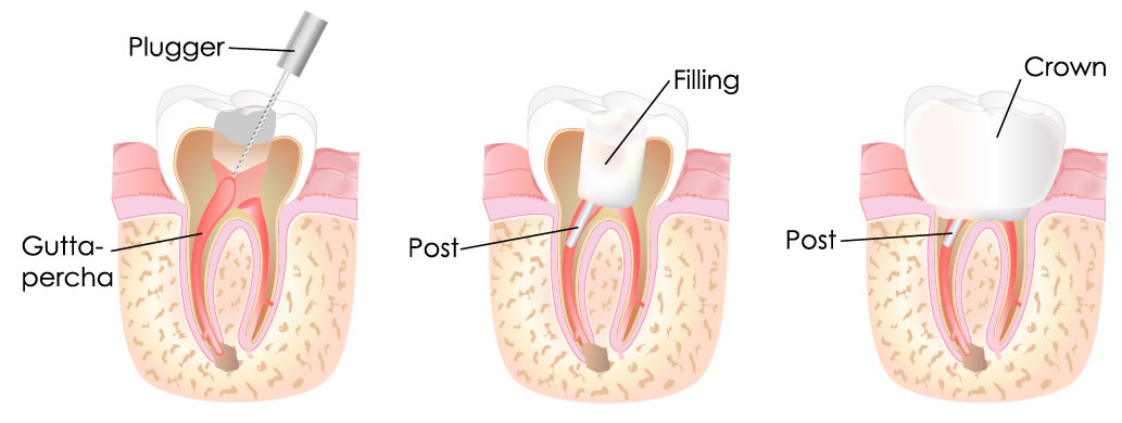 Root Canal Treatment Leigh On Sea At Chalkwell Dental